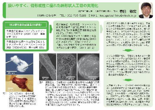 『科研費NEWS』2017 VOL.4で春日敏宏先生の研究成果が紹介されました。